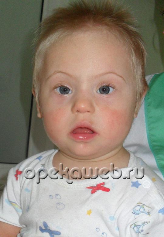 Дети с синдромом дауна из москвы